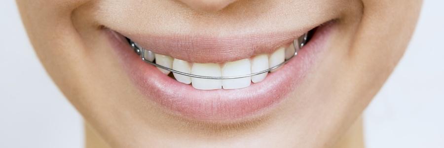 retainer-teeth