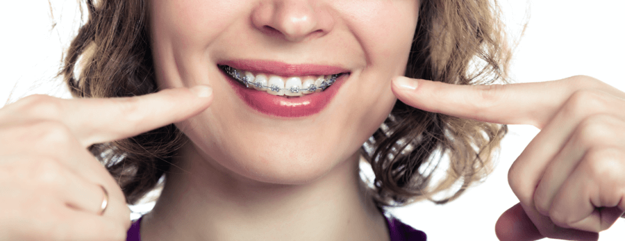 woman-with-adult-braces-1