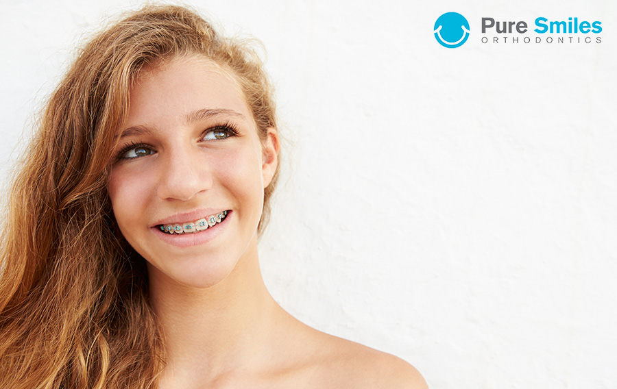 Speed Up Orthodontic Treatment